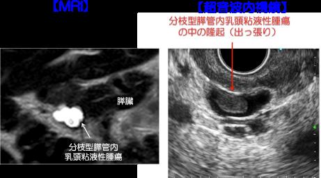 いかん 腫瘍 にゅ うと す えき ない うねん File Details: