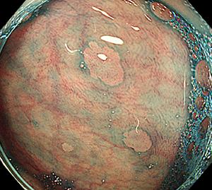 性 過 ポリープ 形成 大腸ポリープについて(大腸腺腫・早期大腸がん)